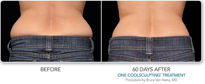 coolsculpting phoenix
