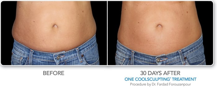 coolsculpting scottsdale