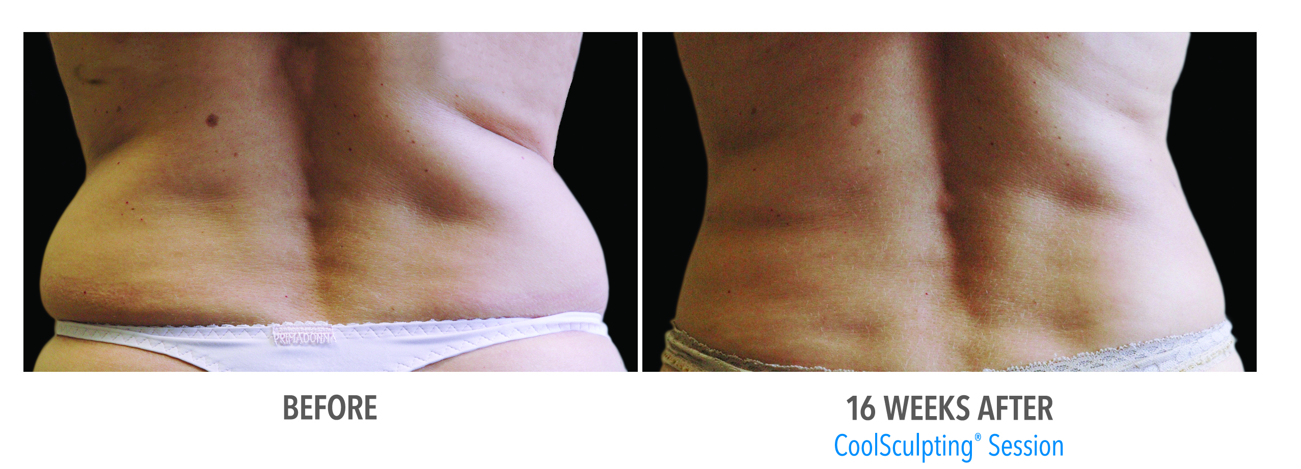 coolsculpting back and waist