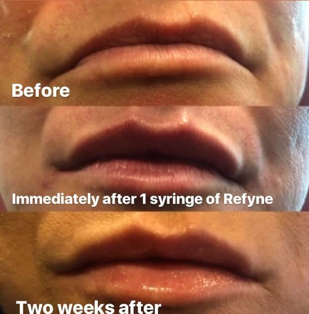 Lip Injections - Restylane Refyne | Blume Skin Treatment